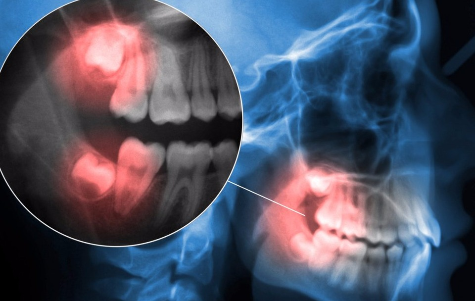 IF in pain with Wisdom Teeth contact us at CM Dental we can help http://www.cmdental.co.nz/emergency-dentist-west-auckland