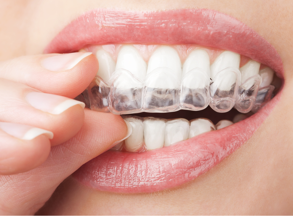 Our team of dentists and hygienists can advise you on the best whitening options for your cosmetic needs