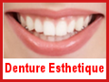 [Denture Esthetique]