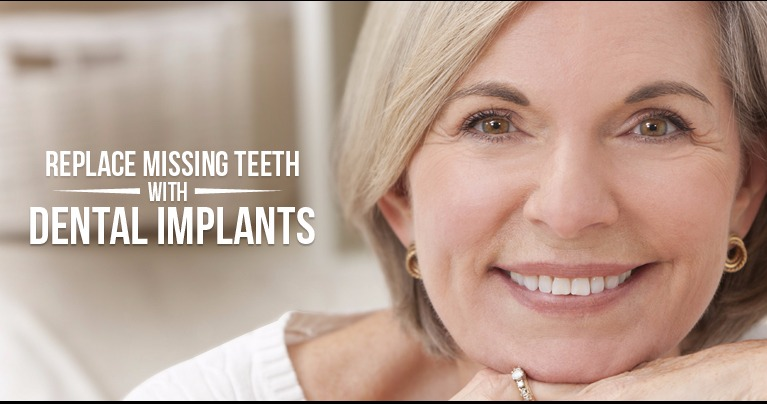 We have been providing Dental Implants  since 1992.
