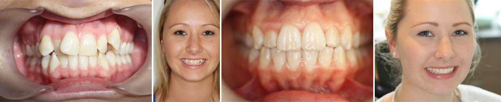 Invisalign before and after at CM dental Ltd/