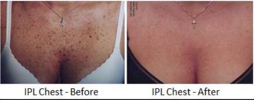 Pigmentation Resolution (sun spots, age spots, freckles)