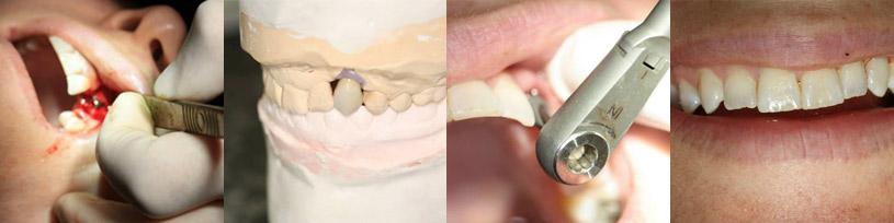 Implant placement and restoration at CM Dental ltd.