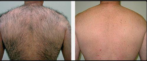 Hair Reduction- Using IPL (Intense Pulsed Light)